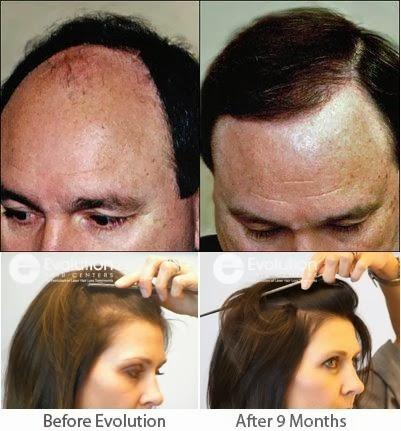 Hair Loss Treatment In India Hair Loss Treatment